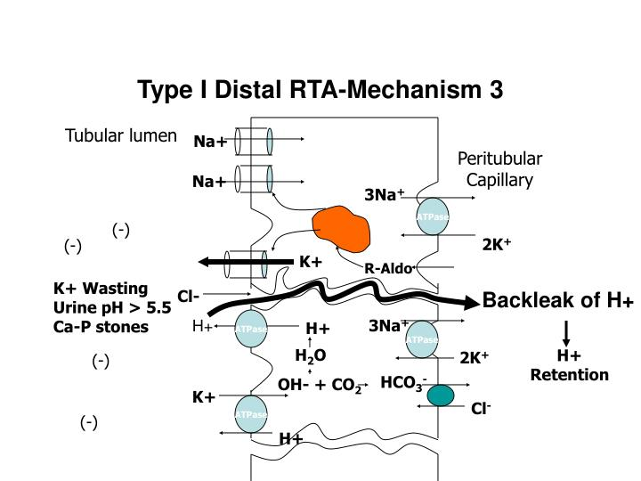 Type I Distal RTA-Mechanism 3