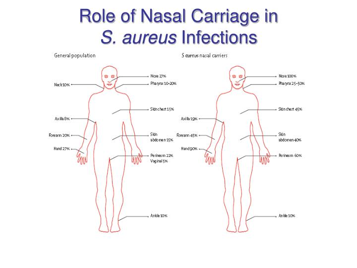 Role of Nasal Carriage in