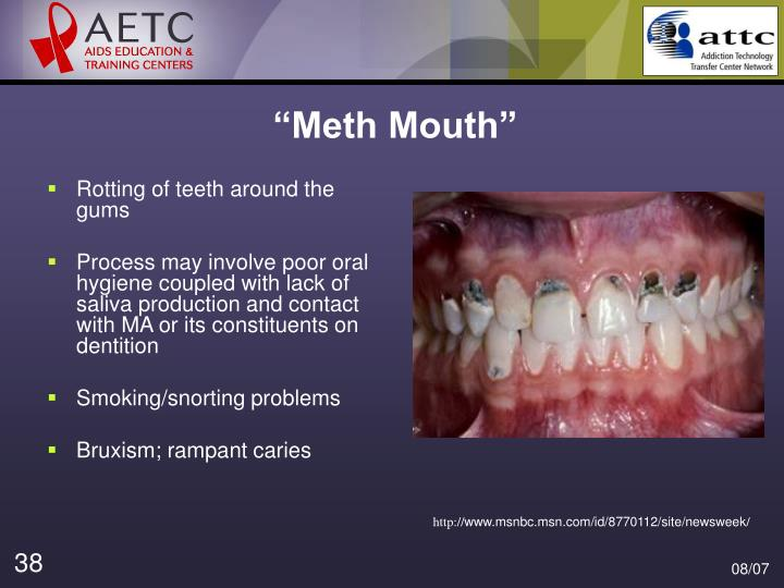 """Meth Mouth"""