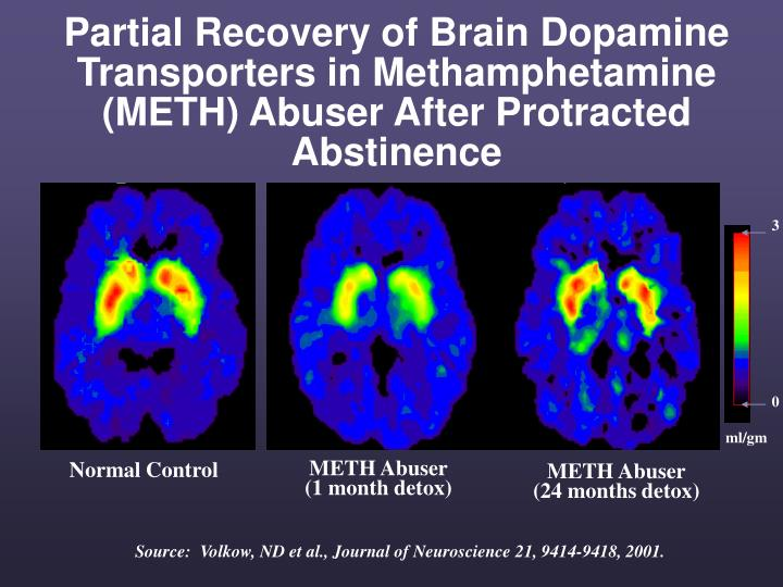 Partial Recovery of Brain Dopamine Transporters in Methamphetamine (METH) Abuser After Protracted Abstinence