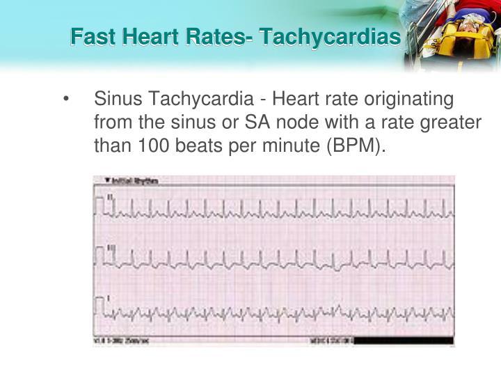 Fast Heart Rates- Tachycardias