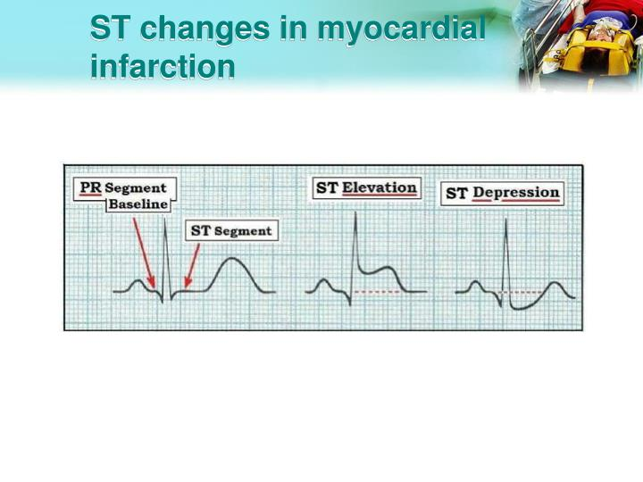 ST changes in myocardial infarction