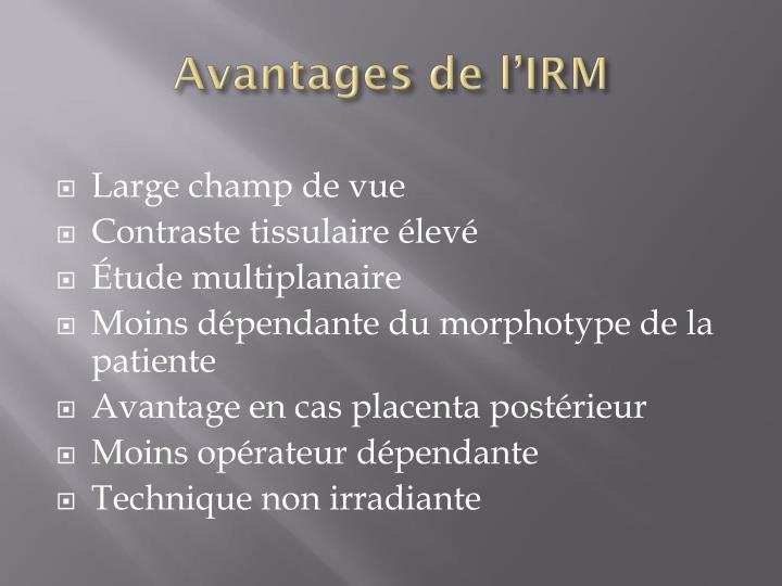 Avantages de l'IRM