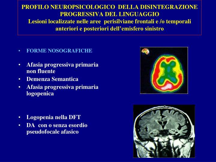PROFILO NEUROPSICOLOGICO  DELLA DISINTEGRAZIONE PROGRESSIVA DEL LINGUAGGIO