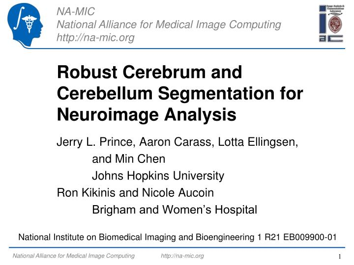 Robust cerebrum and cerebellum segmentation for neuroimage analysis