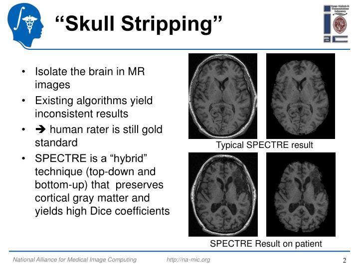 """""""Skull Stripping"""""""