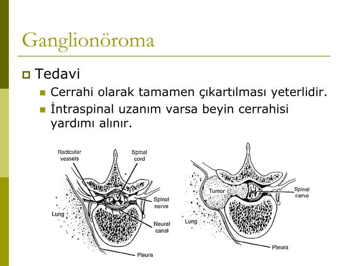 Ganglionöroma
