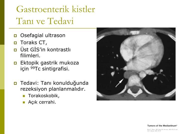 Gastroenterik kistler