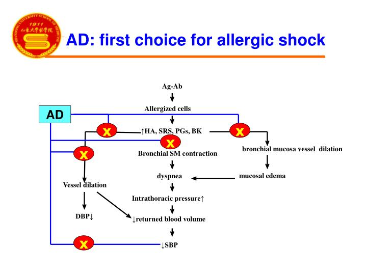 AD: first choice for allergic shock
