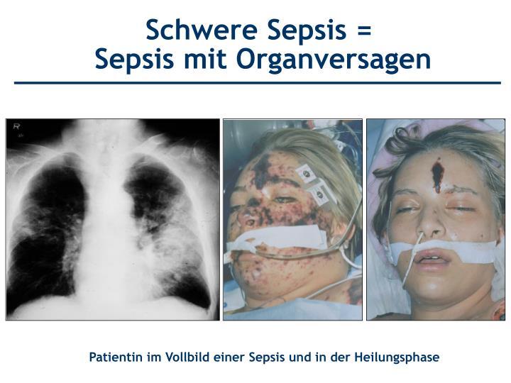 Schwere Sepsis =