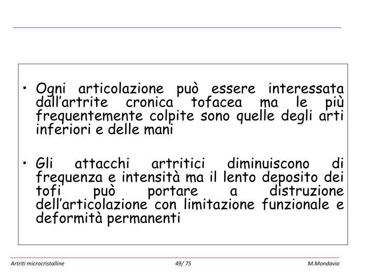 Artropatia uratica cronica