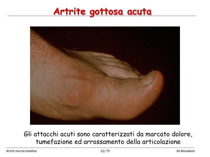 Artrite gottosa acuta