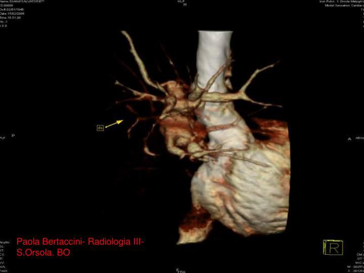 Paola Bertaccini- Radiologia III- S.Orsola. BO