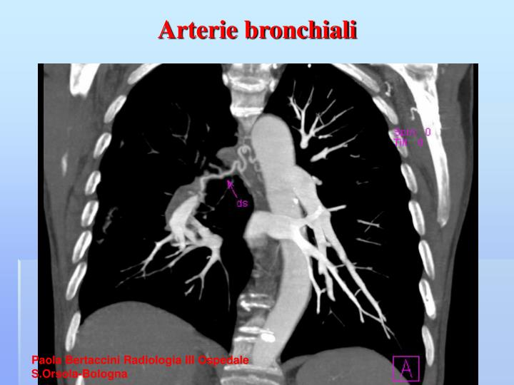 Arterie bronchiali