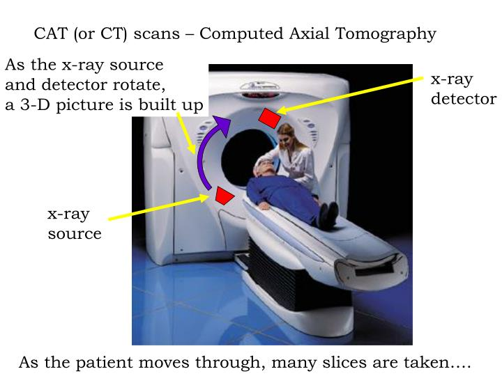 CAT (or CT) scans – Computed Axial Tomography