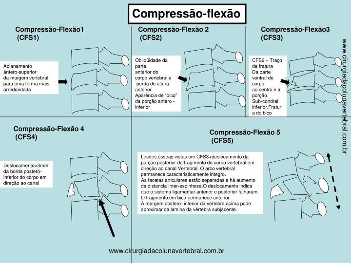 Compressão-flexão