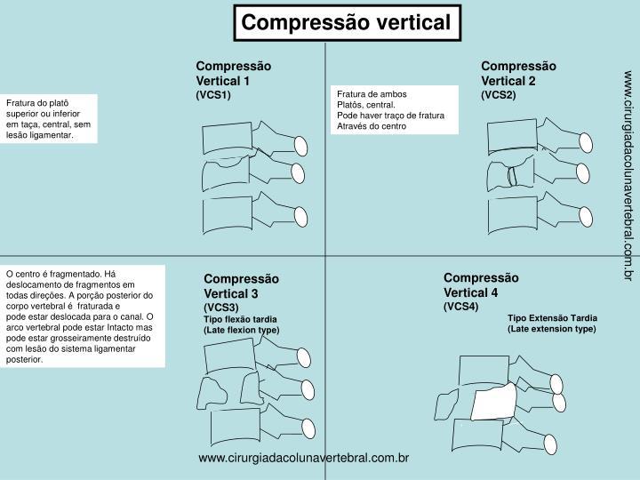 Compressão vertical