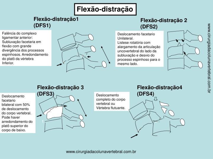 Flexão-distração