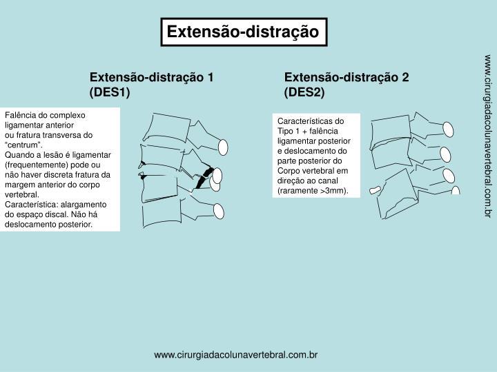 Extensão-distração