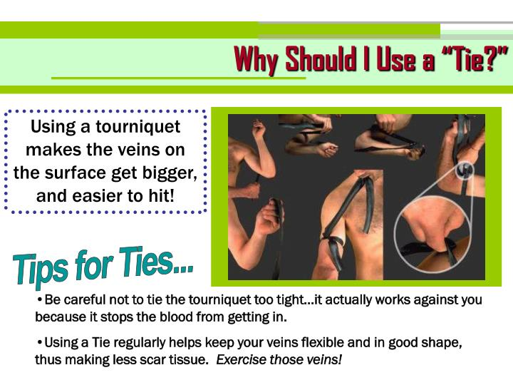 "Why Should I Use a ""Tie?"""