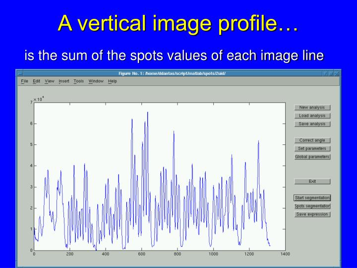 A vertical image profile…
