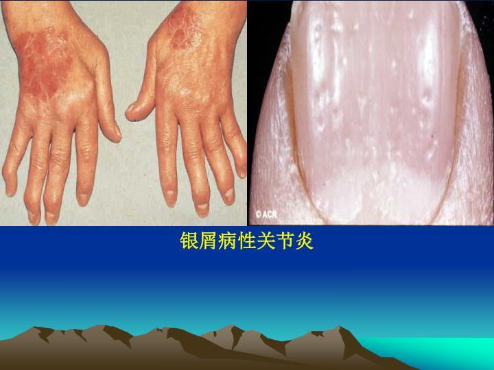 银屑病性关节炎