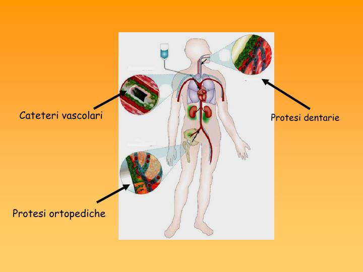 Cateteri vascolari