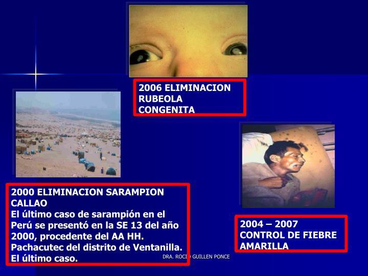 2006 ELIMINACION RUBEOLA CONGENITA