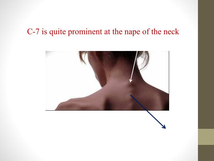 C-7 is quite prominent at the nape of the neck