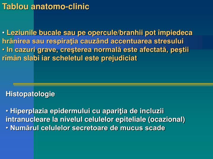 Tablou anatomo-clinic