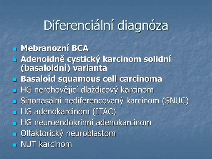 Diferenciln diagnza