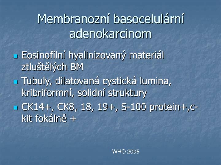 Membranozn basocelulrn adenokarcinom