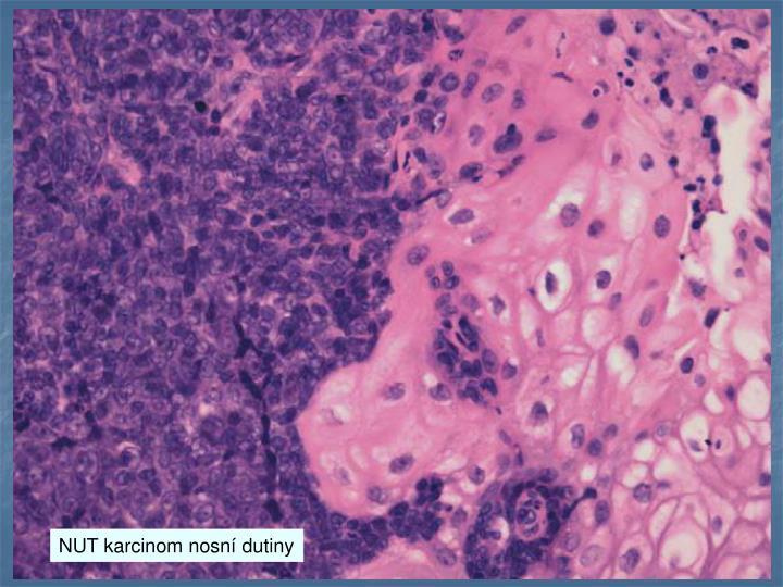 NUT karcinom nosn dutiny