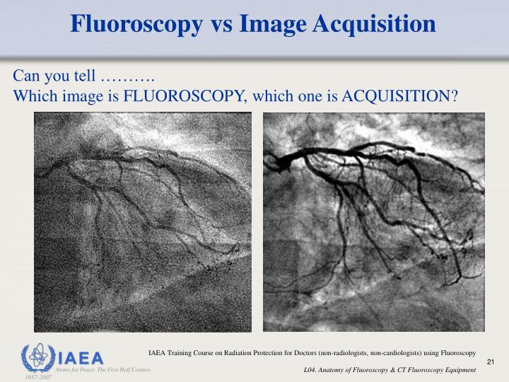 Fluoroscopy vs Image Acquisition
