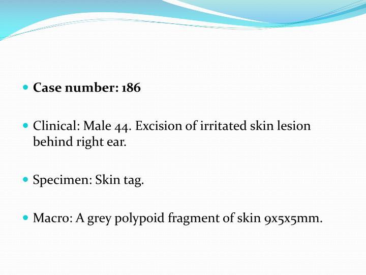Case number: 186