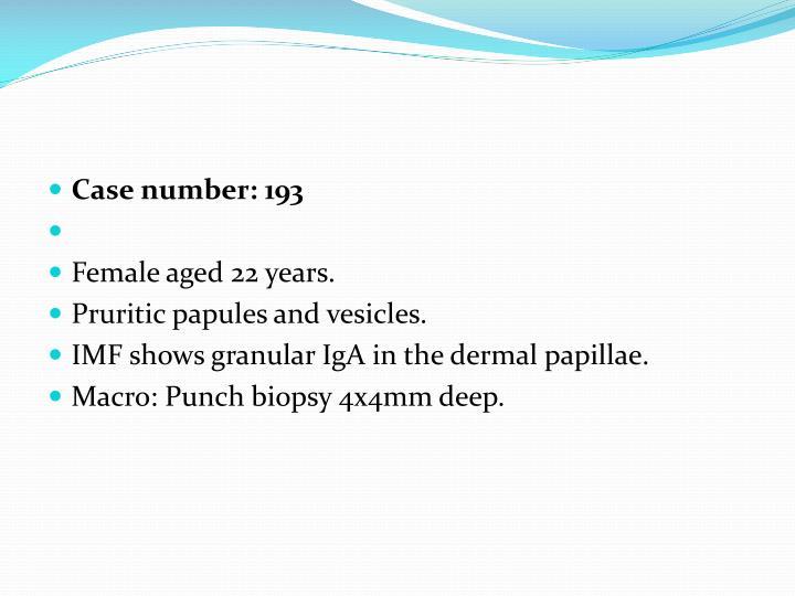 Case number: 193