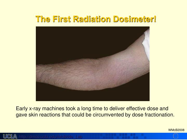 The First Radiation Dosimeter!