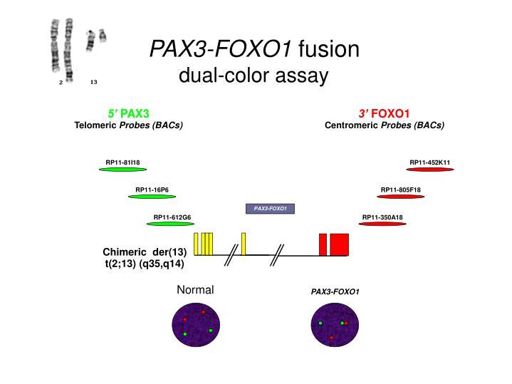 PAX3-FOXO1