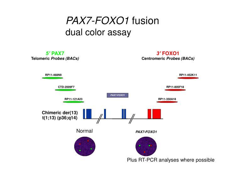 PAX7-FOXO1