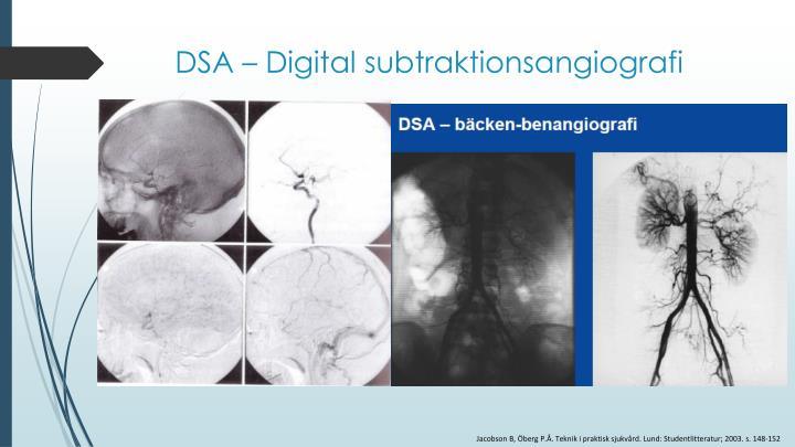 DSA – Digital subtraktionsangiografi