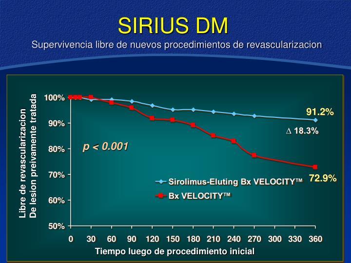 SIRIUS DM