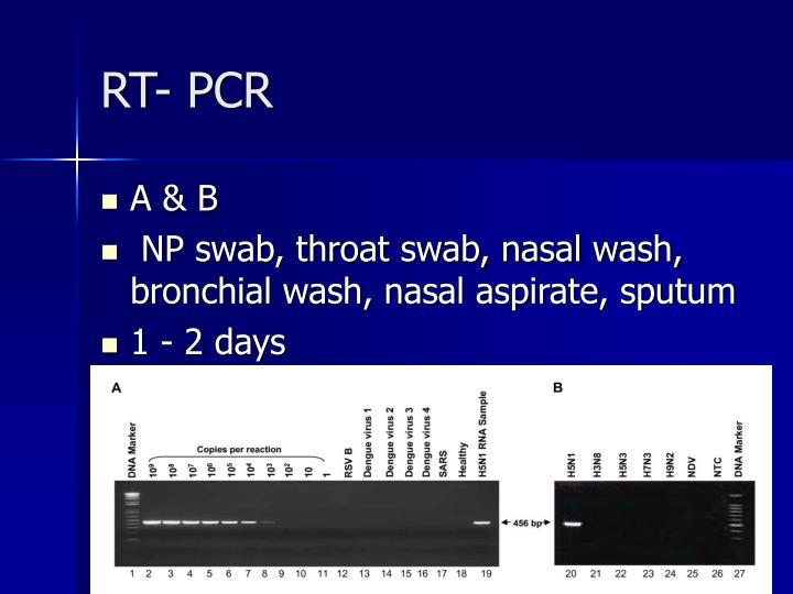 RT- PCR
