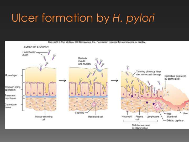 Ulcer formation by