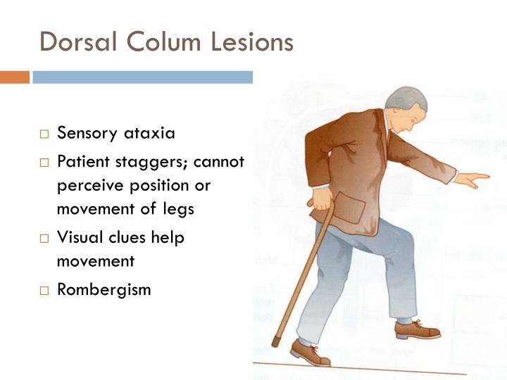 Dorsal Colum Lesions