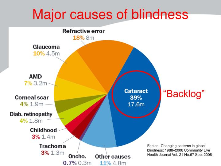 Major causes of blindness