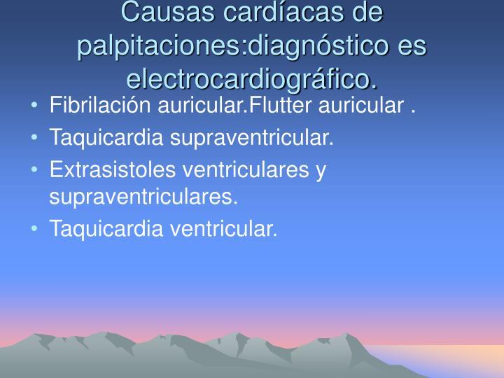 Causas cardíacas de palpitaciones:diagnóstico es electrocardiográfico.