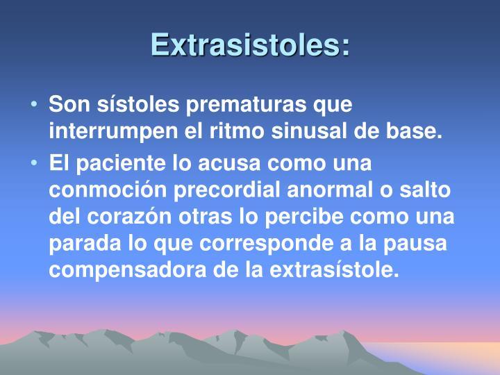 Extrasistoles: