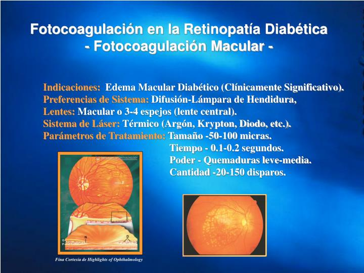 Fotocoagulación