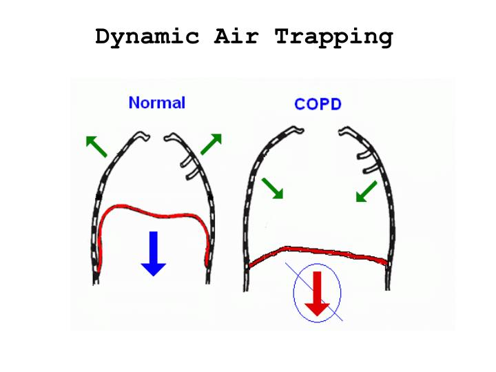 Dynamic Air Trapping