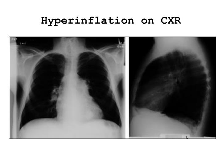 Hyperinflation on CXR